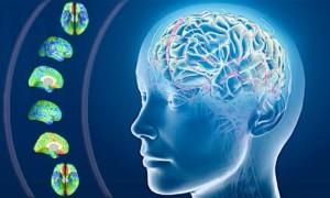 cervello2